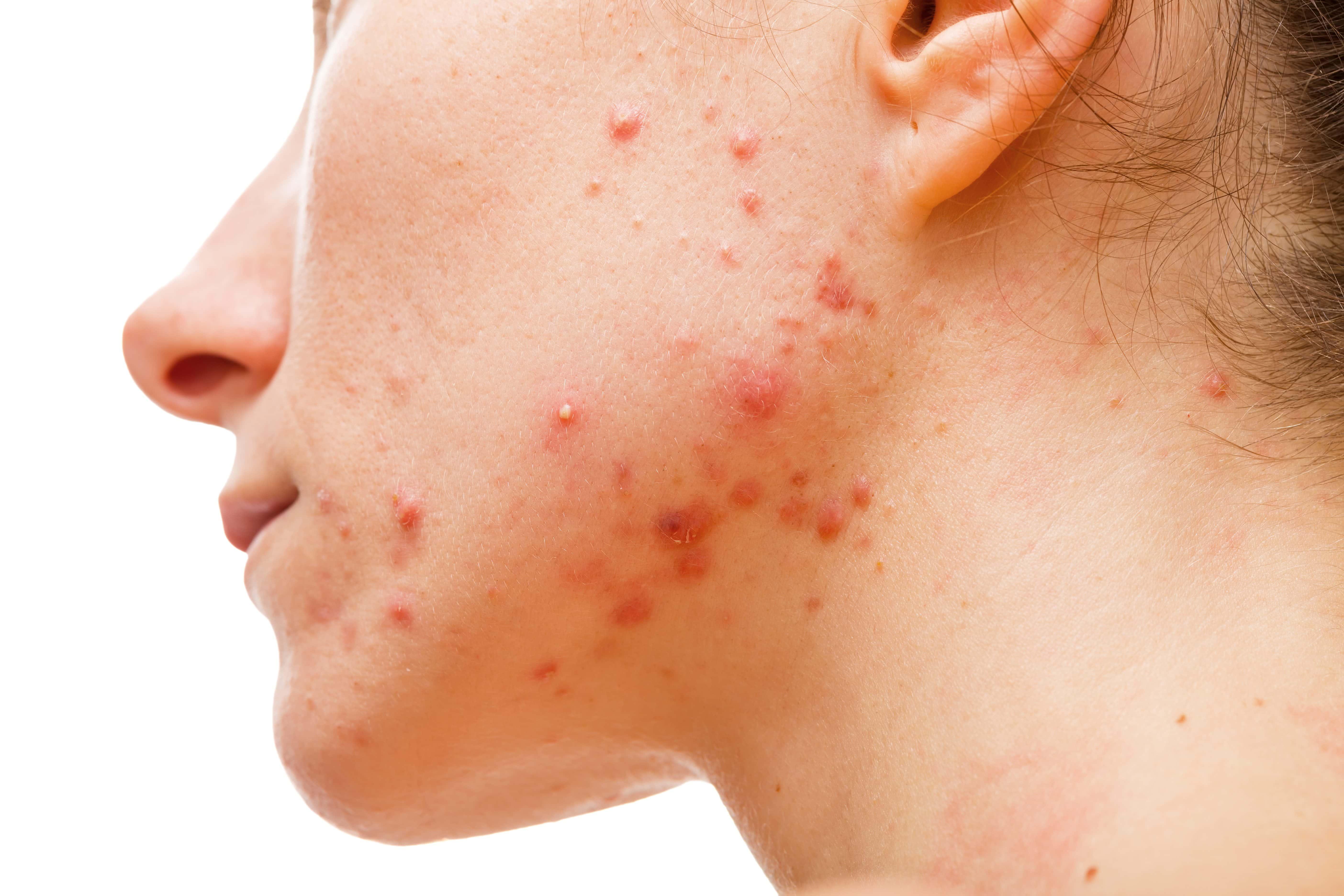 bästa acne produkterna