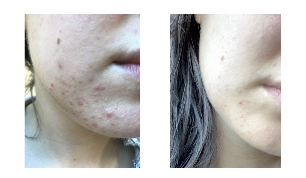 hormonell acne hakan